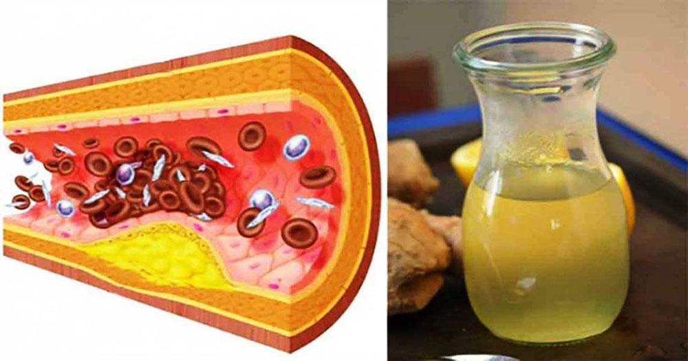 Таблетки от давления при повышенном холестерине